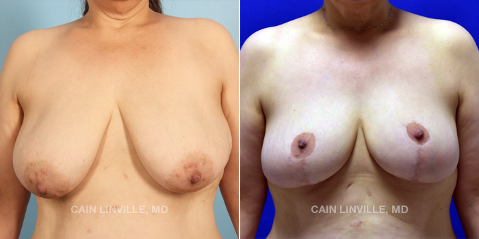 Breast Lift Before And After Patient 8A