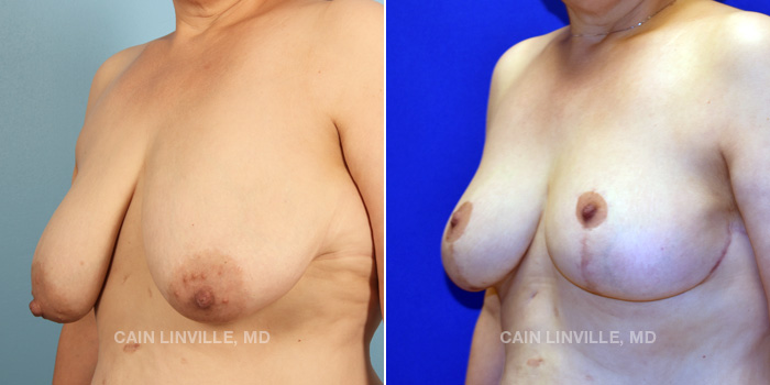 Breast Lift Before And After Patient 8B