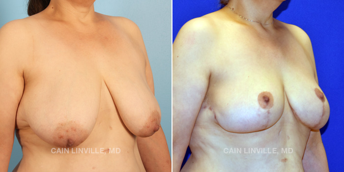 Breast Lift Before And After Patient 8C