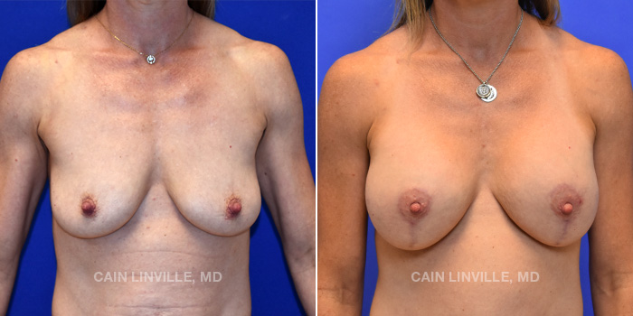 Breast Lift Before And After Patient 6A