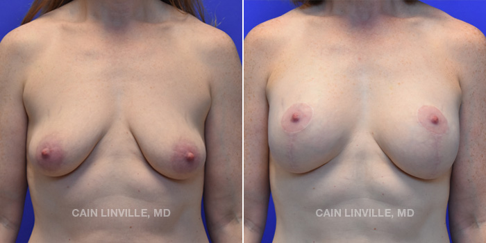 Breast Lift Before And After Patient 7A