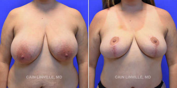 Breast Lift Before And After Patient 9A
