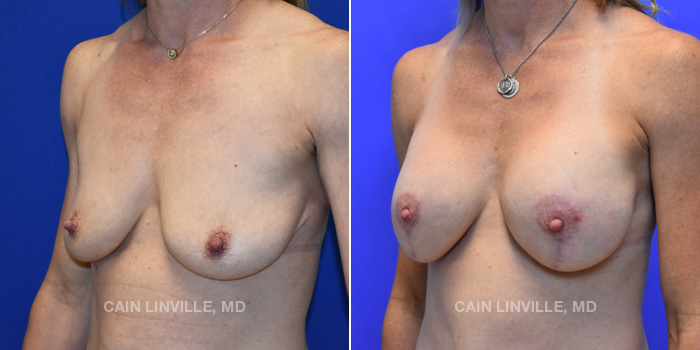 Breast Lift Before And After Patient 6B