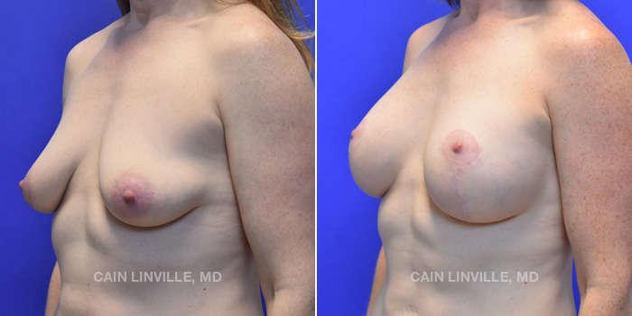 Breast Lift Before And After Patient 7B