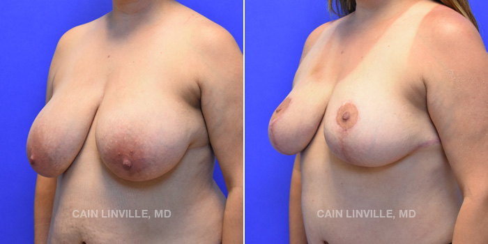 Breast Lift Before And After Patient 9B
