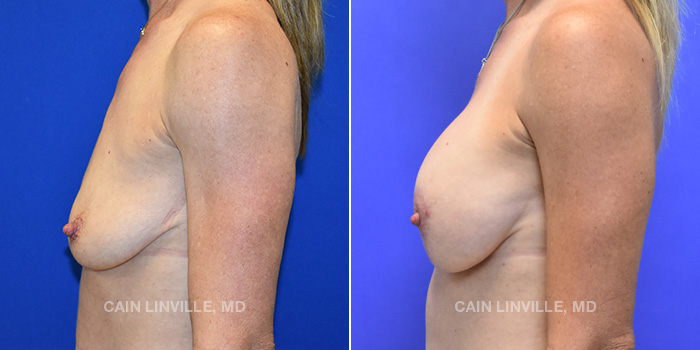 Breast Lift Before And After Patient 6C