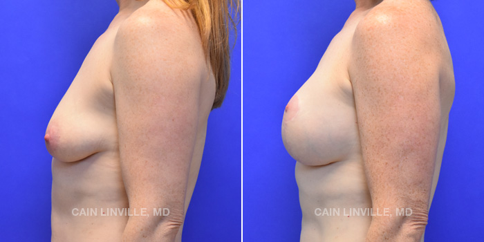 Breast Lift Before And After Patient 7C