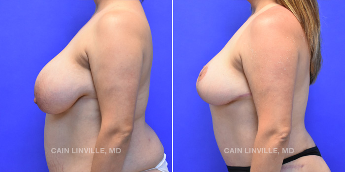 Breast Lift Before And After Patient 9C