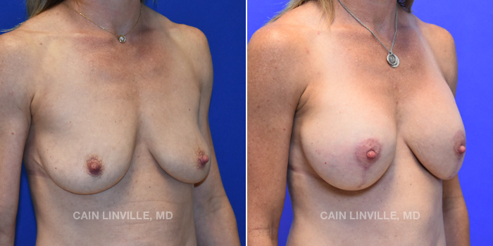 Breast Lift Before And After Patient 6D