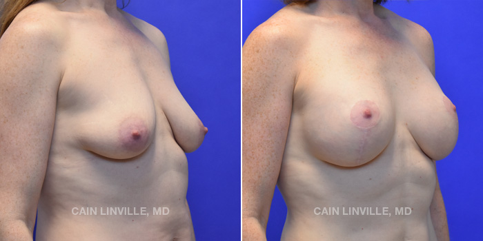 Breast Lift Before And After Patient 7D