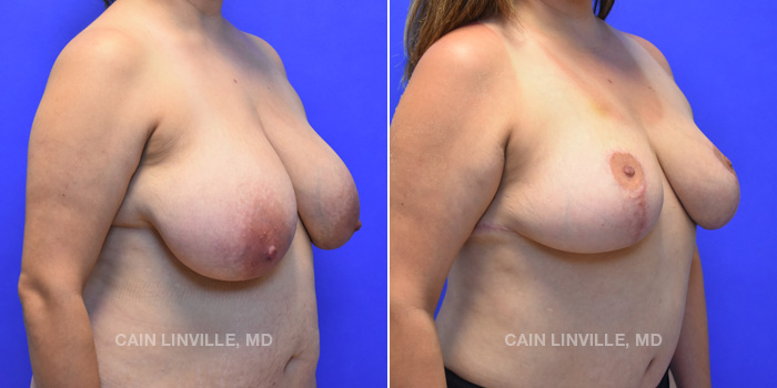 Breast Lift Before And After Patient 9D