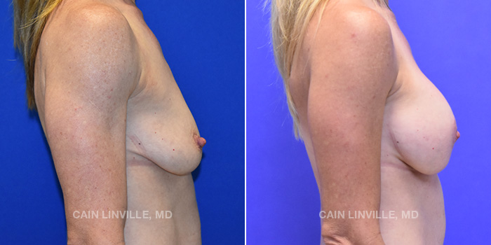 Breast Lift Before And After Patient 6E