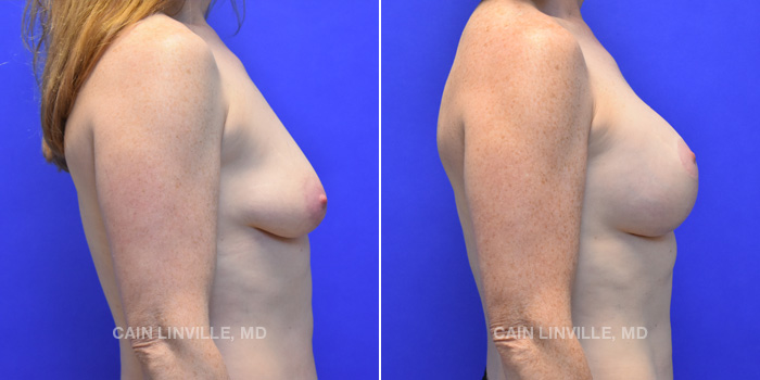 Breast Lift Before And After Patient 7E