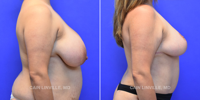 Breast Lift Before And After Patient 9E