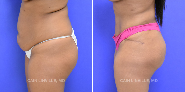 Brazilian Butt Lift Before And After Patient 5A