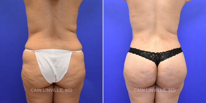 Brazilian Butt Lift Before And After Patient 7A