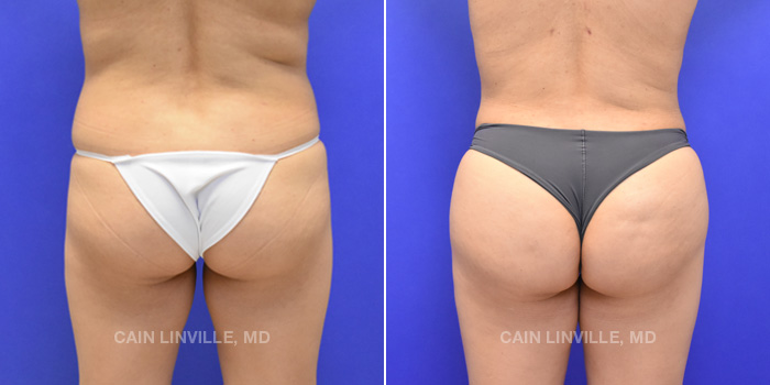 Brazilian Butt Lift Before And After Patient 4A