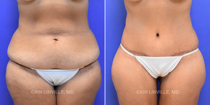 Lipo Tummy Tuck Before And After Patient 15A