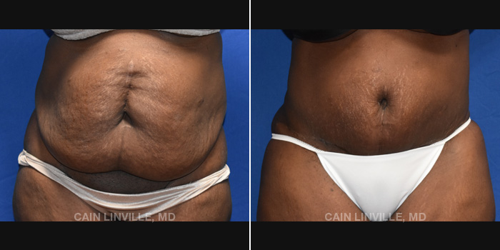 Lipo Tummy Tuck Before And After Patient 16A