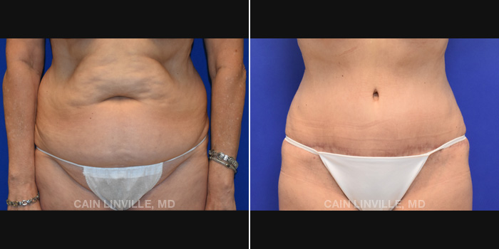 Lipo Tummy Tuck Before And After Patient 18A