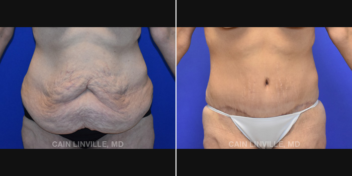 Lipo Tummy Tuck Before And After Patient 19A