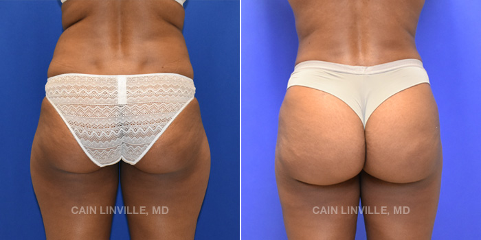 Brazilian Butt Lift Before And After Patient 9