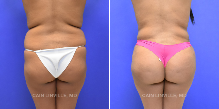 Brazilian Butt Lift Before And After Patient 5B