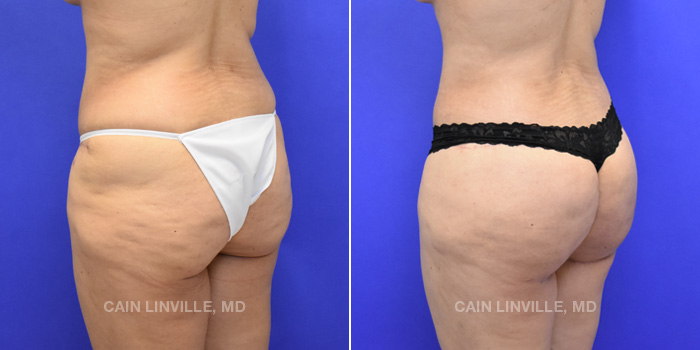 Brazilian Butt Lift Before And After Patient 7B