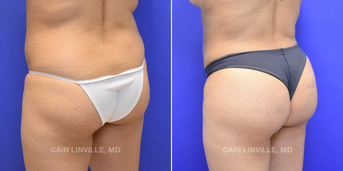 Brazilian Butt Lift Before And After Patient 4B