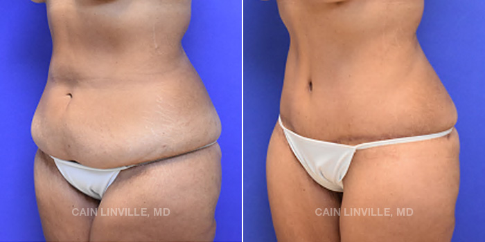 Lipo Tummy Tuck Before And After Patient 15B