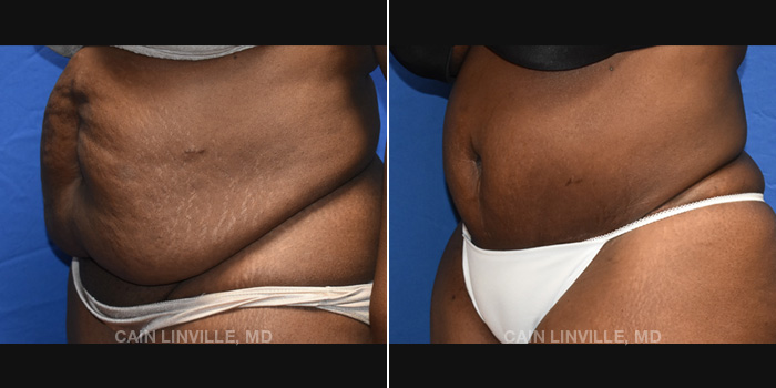 Lipo Tummy Tuck Before And After Patient 16B