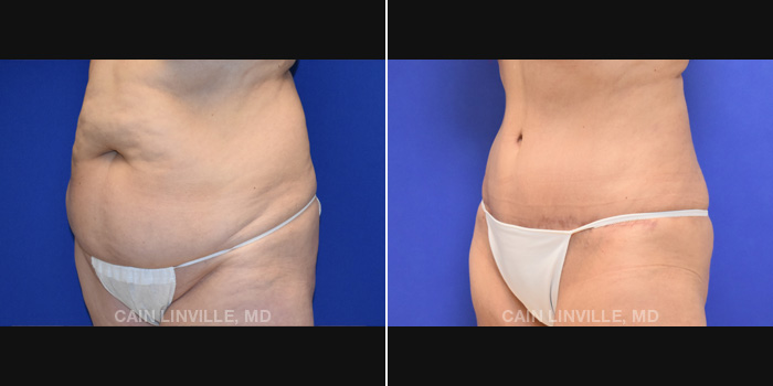 Lipo Tummy Tuck Before And After Patient 18B