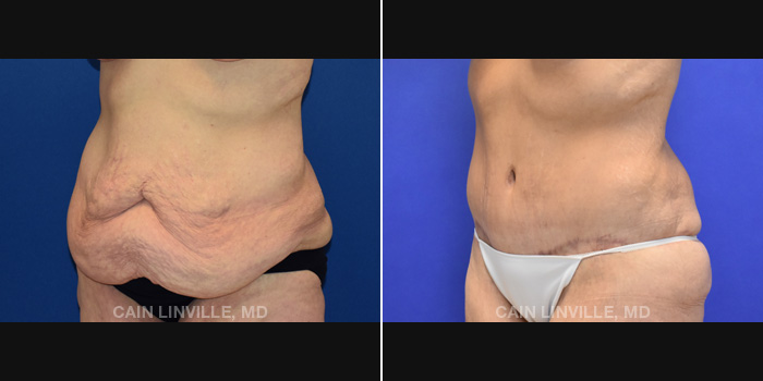 Lipo Tummy Tuck Before And After Patient 19B