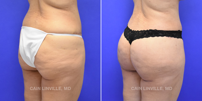 Brazilian Butt Lift Before And After Patient 7C