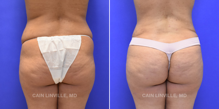 Brazilian Butt Lift Before And After Patient 11
