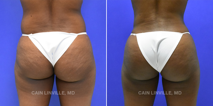 Brazilian Butt Lift Before And After Patient 12