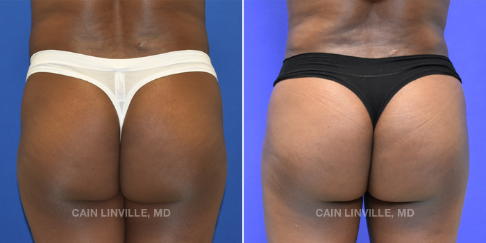 Brazilian Butt Lift Before And After Patient 8