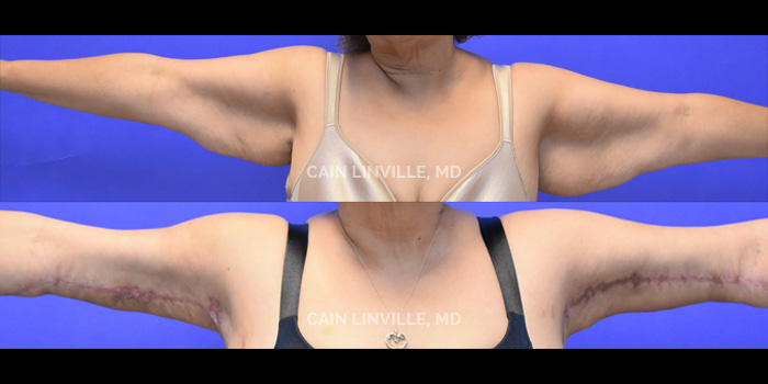 Brachioplasty (Arm Lift) Before And After Patient 2A