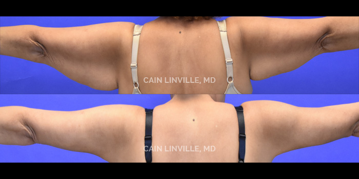 Brachioplasty (Arm Lift) Before And After Patient 2B