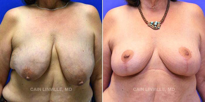 Breast Lift Before And After Patient 10A