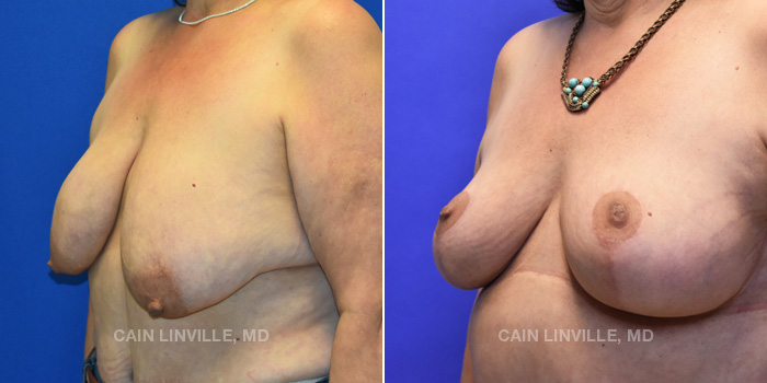 Breast Lift Before And After Patient 10B