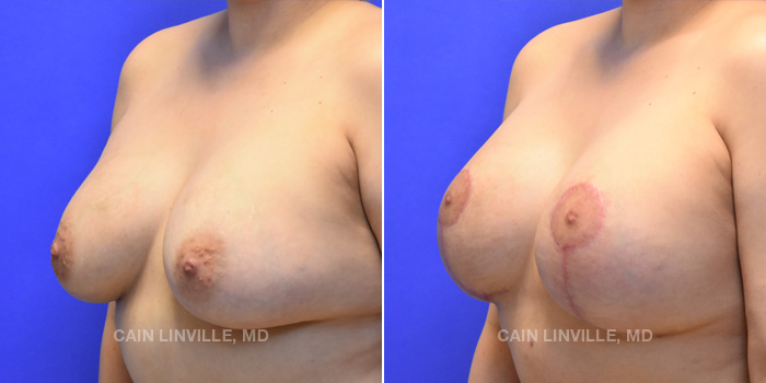Breast Lift Before And After Patient 11B