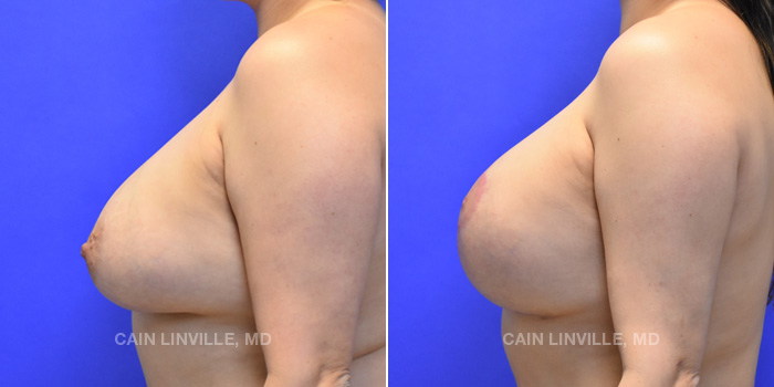 Breast Lift Before And After Patient 11C