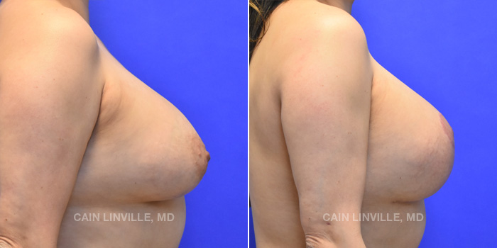 Breast Lift Before And After Patient 11E