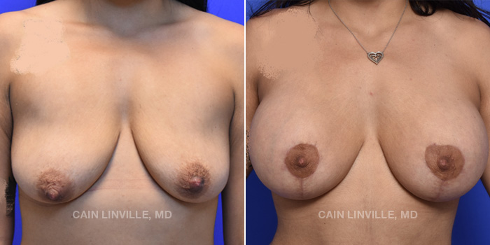 Breast Lift Before And After Patient 12A