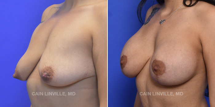 Breast Lift Before And After Patient 12B