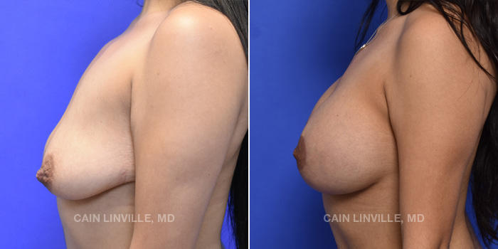 Breast Lift Before And After Patient 12C