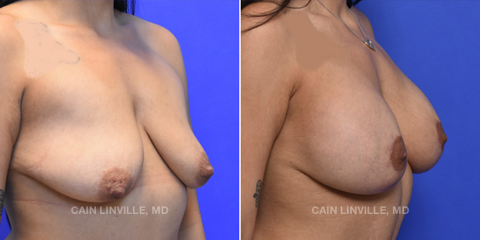 Breast Lift Before And After Patient 12D