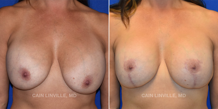 Breast Lift Before And After Patient 13A