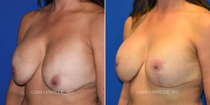 Breast Lift Before And After Patient 13B
